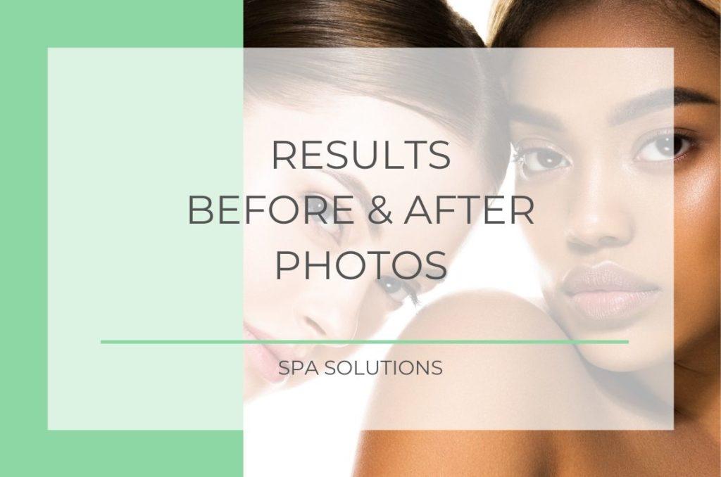 Spa Solutions Portfolio Banners 3